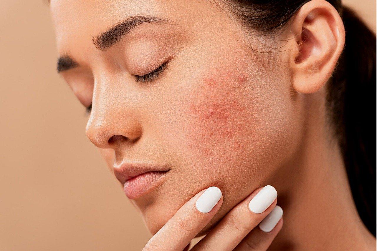 Unreine Haut wird gemeinhin als Makel angesehen und soll verbessert werden.